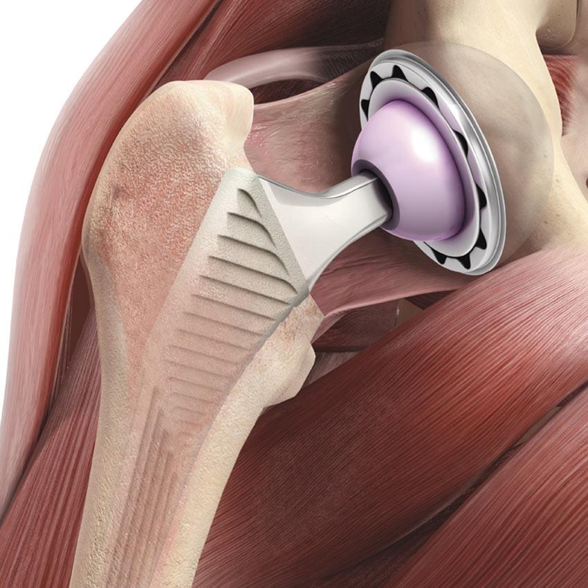 Kniegelenkersatz prothese